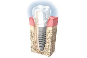 Implantater tandlæge Haderselv